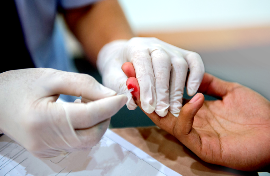 A person doing a HIV test. ANURAKE SINGTO-ON/Shutterstock.com